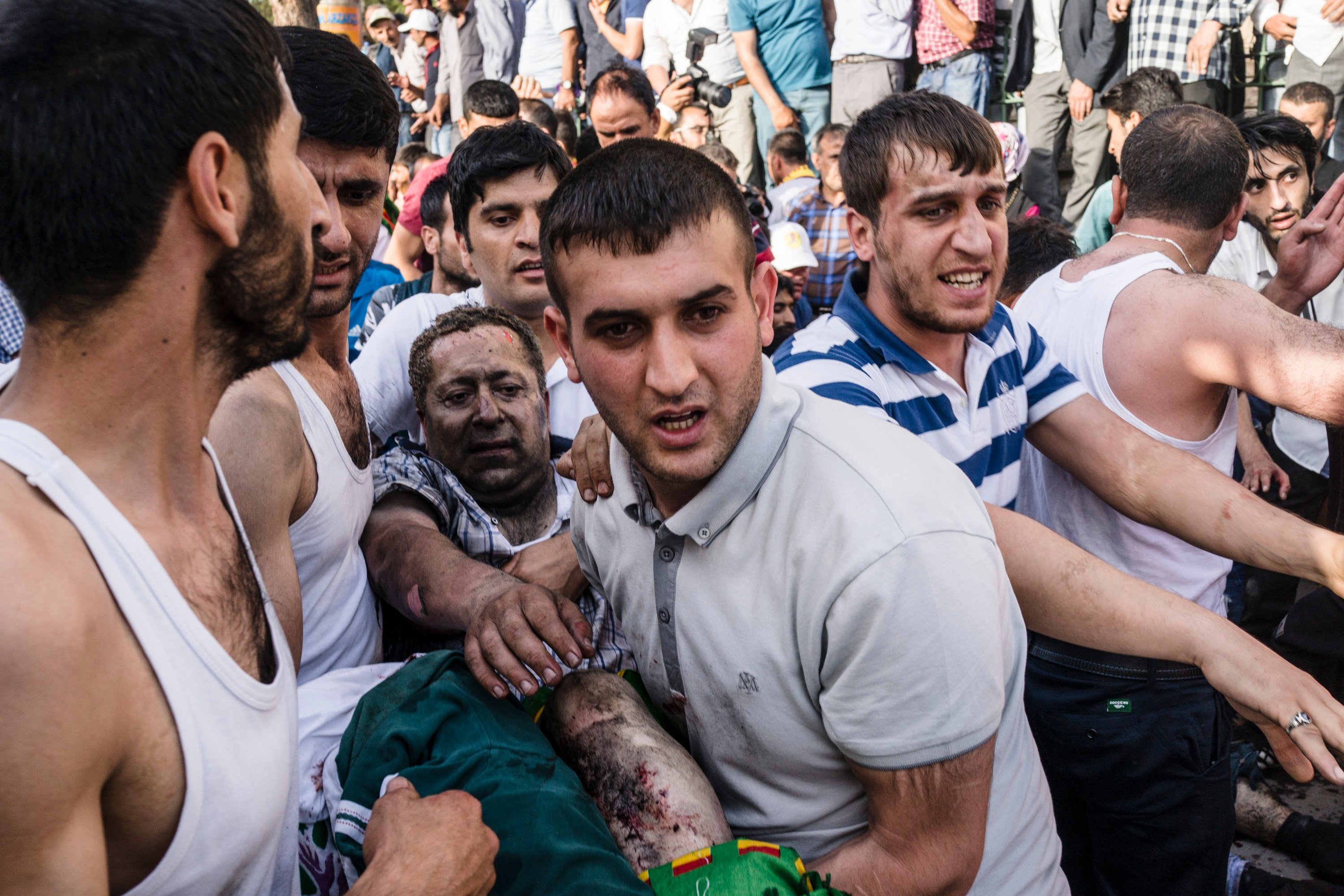 An injured man is carried away from the scene of a co-ordinated bombings during a HDP rally in central Diyarbakir, South East Turkey on June 5th. All images © Guy Martin/Panos.